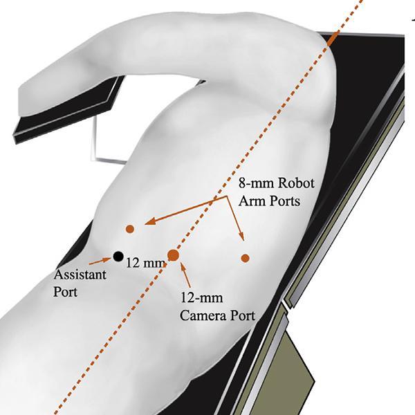 trocar configuration nephrectomy